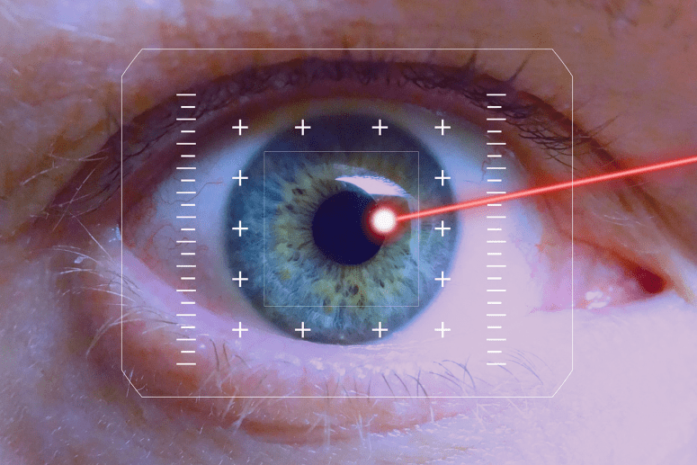 Are the Results of LASIK Eye Surgery Permanent?