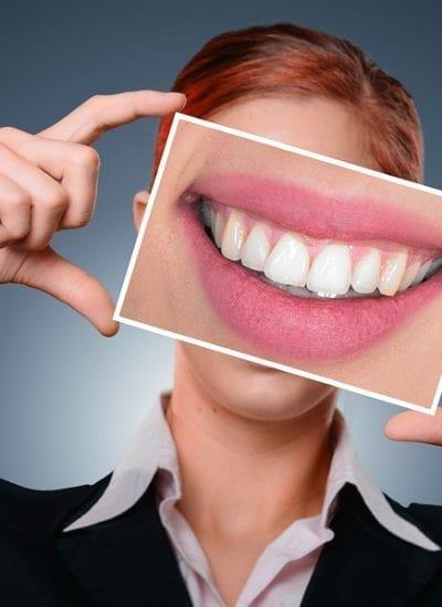 5 Ways to Keep Cavities Away